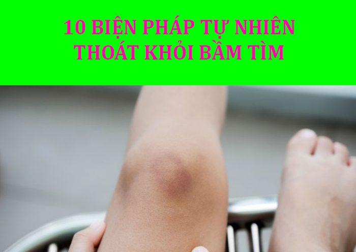 Cách chữa vết bầm tím hiệu quả